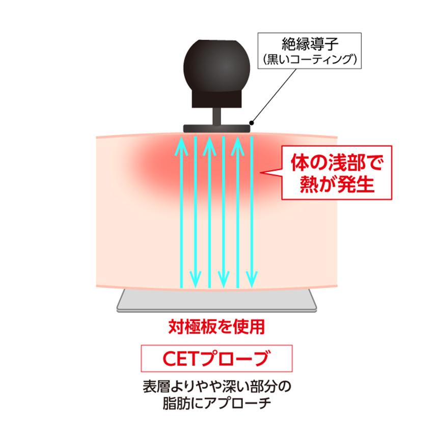 業務用ラジオ波エステ機器コアヒートの浅い部分に働きかける浅部用CETプローブ(電極)②