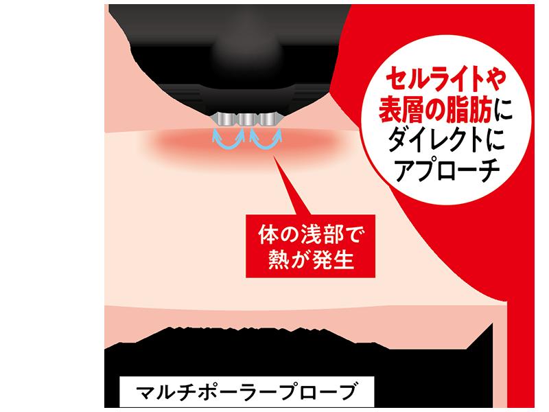 セルライトや表層の脂肪にダイレクトにアプローチするマルチポーラープロープの仕組み